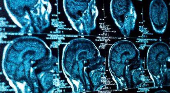 Fluoride & the Shrinking IQ