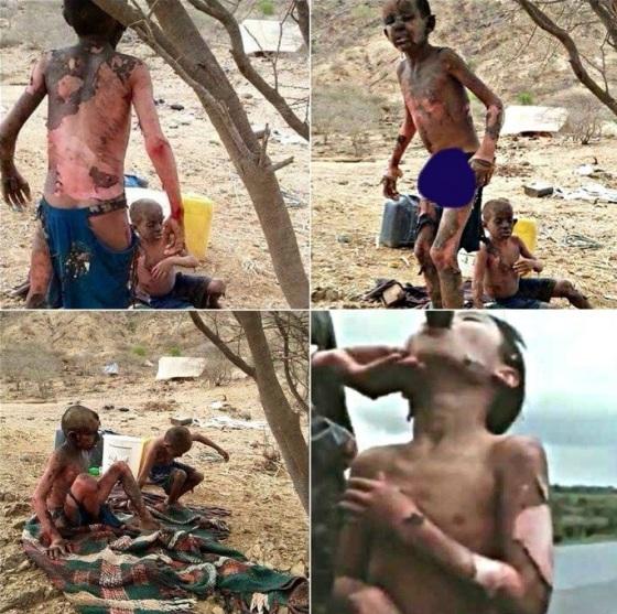 yemen-genocide