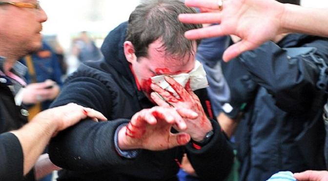 Macron's Brutal Fascist Regime Exposed!