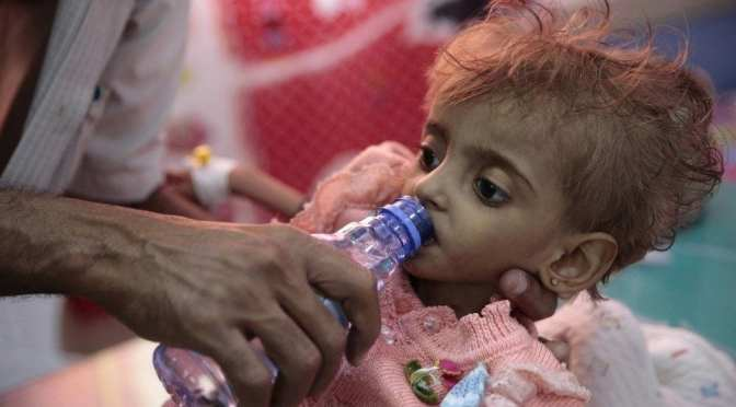 United States and France Jointly Responsible for Famine in Yemen