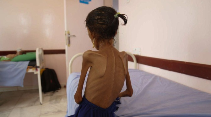 Saudi Attacks on Yemen's Farmers are Pushing the Whole Country into Famine